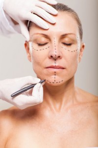 senior woman with correction lines preparing for facelift surgery